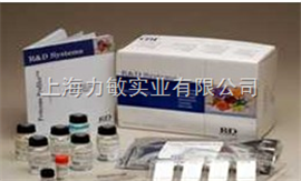 314-ml-025RD Recombinant human IL-17A人白介17因子